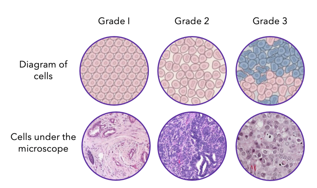 Breast Cancer Grades