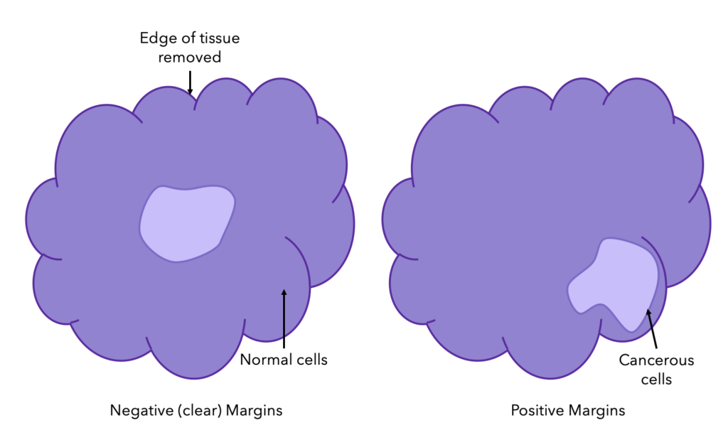 Breast Cancer Margins