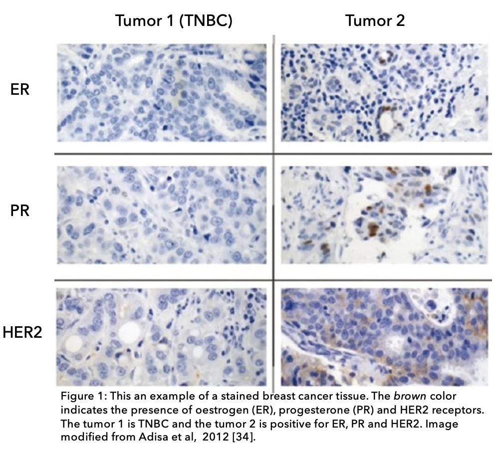 Triple Negative Breast Cancer Tumor