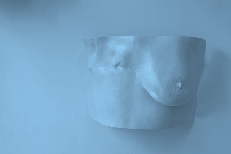 Mastectomy Cast